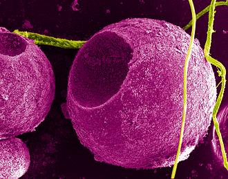 Quantum dot - Cadmium sulfide quantum dots on cells