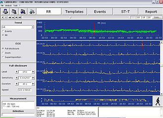 Holter monitor - Screenshot of Holter ECG software
