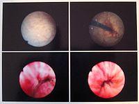 hematoma en la uretra después del catéter