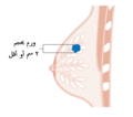 Diagram showing stage T1 breast cancer CRUK 244-ar.png