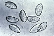 morfologia ouălor de helmint enterobioza giardioza