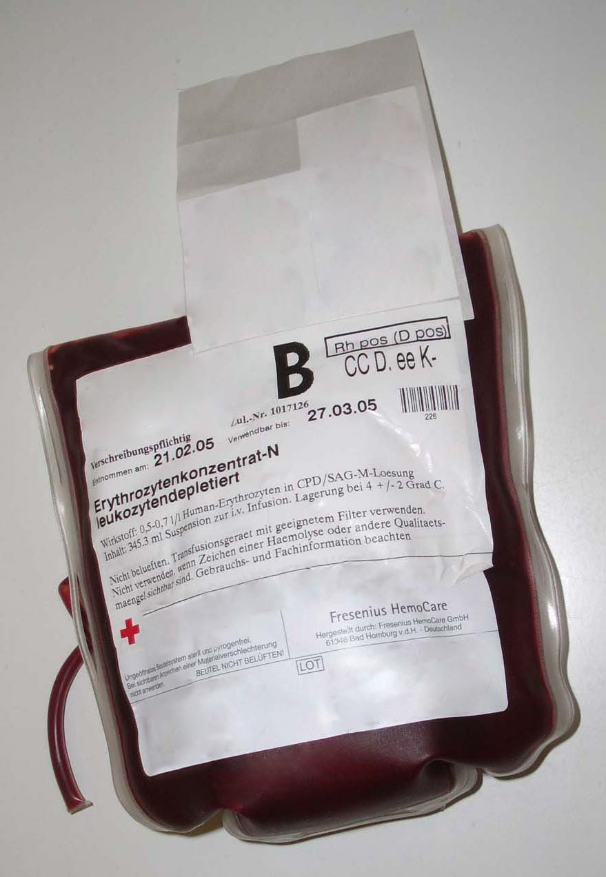 Plastic bag 0.5–0.7 liters containing packed red blood cells in citrate, phosphate, dextrose, and adenine (CPDA) solution