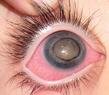 Eye of patient with Coats' disease.jpg