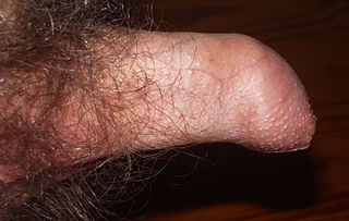 Phimosis condition in which the foreskin cannot be pulled back past the glans of the penis