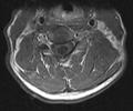 Neck MRI 131113.png