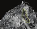 Nodo Seno-Auricular límites endocárdicos.png