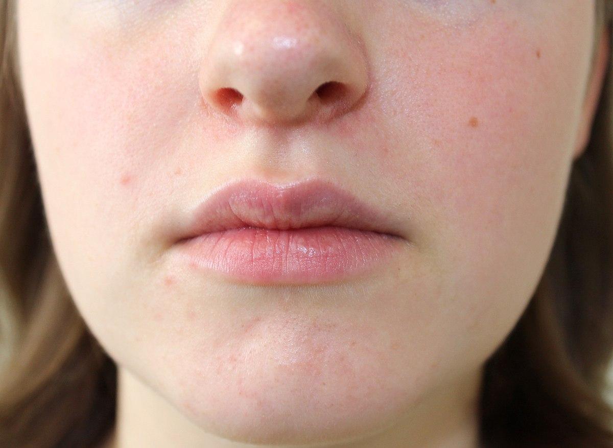 dermatitis vagy rosacea