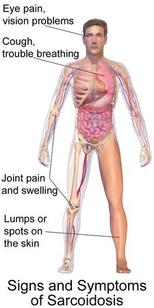 Typické příznaky sarkoidózy