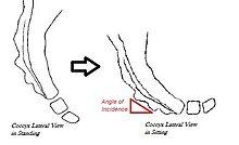 bolesti kostrče