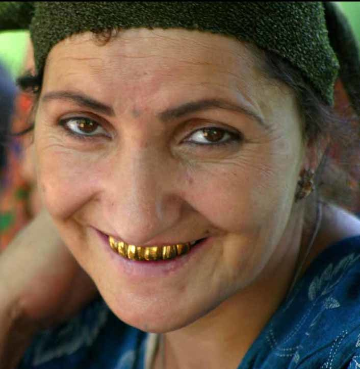 Tajikistan gold teeth