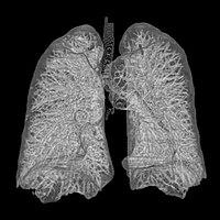 Imagen de los pulmones obtenida mediante ecografía.