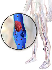 Deep vein thrombosis - Wikipedia