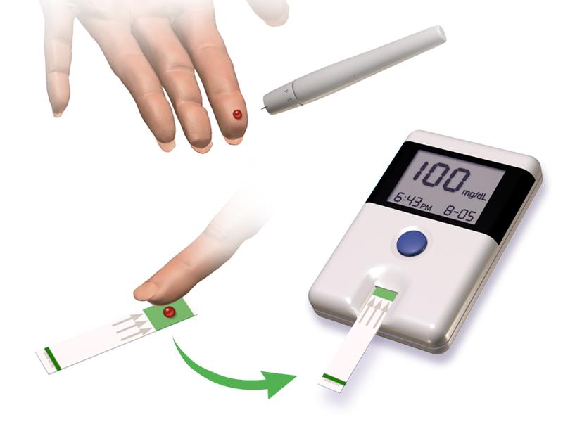 File:Blausen 0301 Diabetes GlucoseMonitoring.png