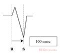 De-Rhythm RSratio (CardioNetworks ECGpedia).png