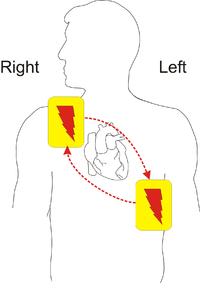 Automated external defibrillator - Wikipedia
