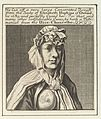 Elizabeth Hopkins of Oxford, showing a breast with cancer Wellcome L0034867.jpg