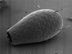 Euglypha sp.