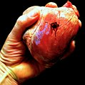 I ripped off my wounded heart - Flickr - Stiller Beobachter.jpg