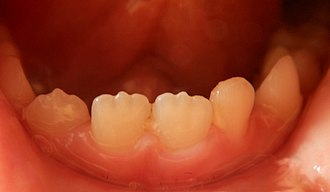 Mamelon (dentistry) - Mamelons on the lower central and lateral right incisors of a seven-year-old boy