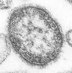 Measles virus.JPG