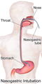 Nasogastric Intubation.png