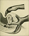 The Principles and practice of gynecology - for students and practitioners (1904) (14787645583).jpg