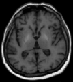 Acquired hepatocerebral degeneration MRI T1ax.png