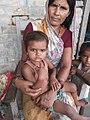 Acute Encephalitis Outbreak Investigation - India (16535798454).jpg