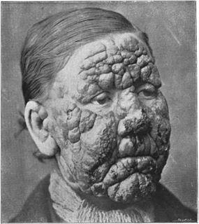 Leprosy in Louisiana