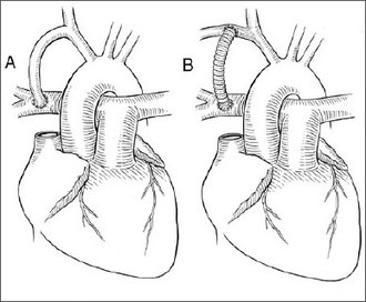 Vivien Thomas - Schematic representation of the Blalock-Thomas-Taussig anastomosis between the right subclavian artery and right pulmonary artery. A / initial anastomosis - B / modified anastomosis.