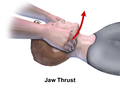 CPR Adult Jaw Thrust.png