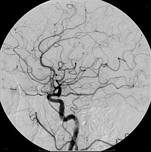 Radiocontrast agent - Example of iodine based contrast in cerebral angiography
