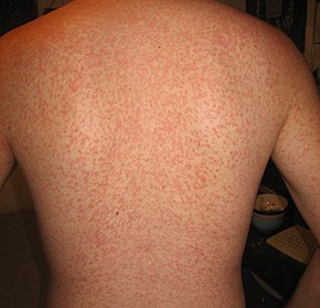 Cross reaction rash