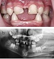 Dental abnormalities in a 5-year-old girl from north Sweden family who suffered from various symptoms of autosomal dominant hypohidrotic ectodermal dysplasia (HED).jpg