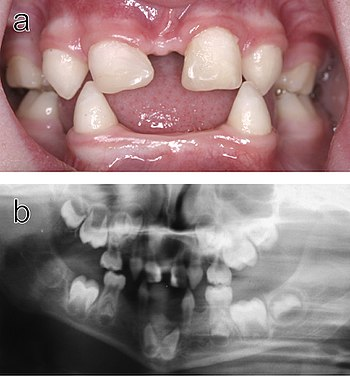 Right! seems multiple tooth extraction facial deformaties
