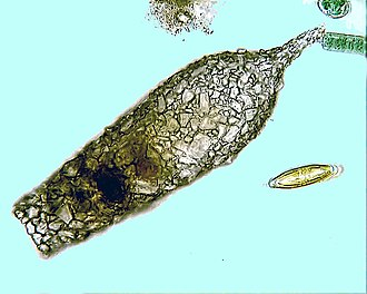 Amoeba - Shell of the testate amoeba Difflugia acuminata.