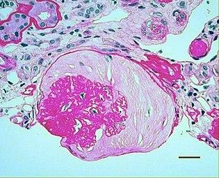 nephroptosis hipertónia