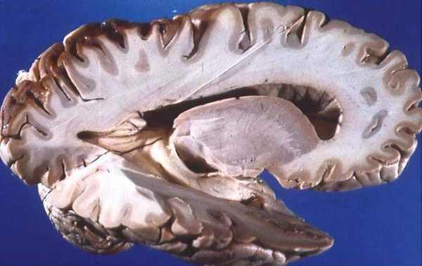 Human brain right dissected lateral view.JPG