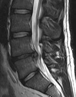 Bol u donjem dijelu leđa – Wikipedija