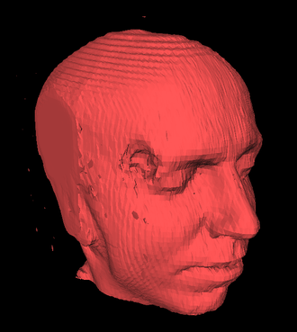 Marching cubes - Head and cerebral structures (hidden) extracted from 150 MRI slices using marching-cubes (about 150,000 triangles)