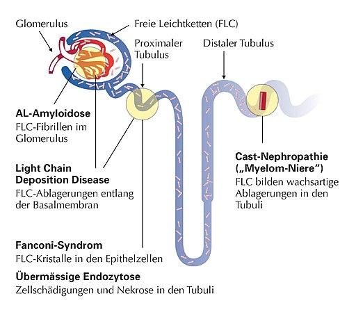 Monoklonale Gammopathien - Bedeutung in der Nephrologie - 2