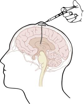 drug addiction brain disease