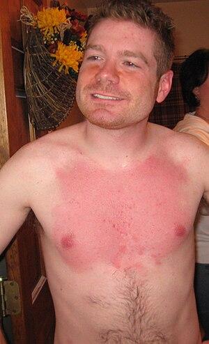 English: Post waxing inflammation of a males torso