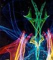 Spectrafocus bilateral image.jpg