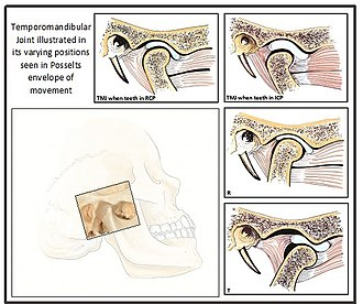 Occlusion (dentistry) - Anatomy of the temporomandibular joint  - RCP = Here we see the condyle when teeth are in the retruded contact position, a reproducible position. ICP = Here we see the condyle position when teeth are in the intercuspal position,  R = Mandibular opening with rotation of the condylar heads but without translation , T = Maximum opening of the mandible combined rotation and translation of condylar heads. (Institute of Dentistry, Aberdeen University)