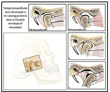 Functional Occlusion From Tmj To Smile Design Pdf
