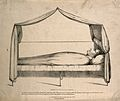 The body of Napoleon Bonaparte laid out after death, 1821. L Wellcome V0006898.jpg