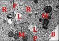 Tissu endocrinoïde de Mastophora au microscope électronique.jpg