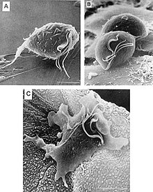 A Trichomonas fertőzés tünetei férfiaknál