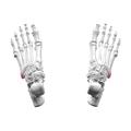 Tuberosity of fifth metatarsal bone 02 superior view.png
